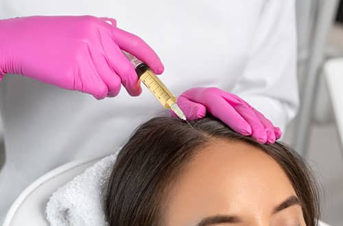 PRP (Platelet Rich Plasma) Therapy for Hair Restoration